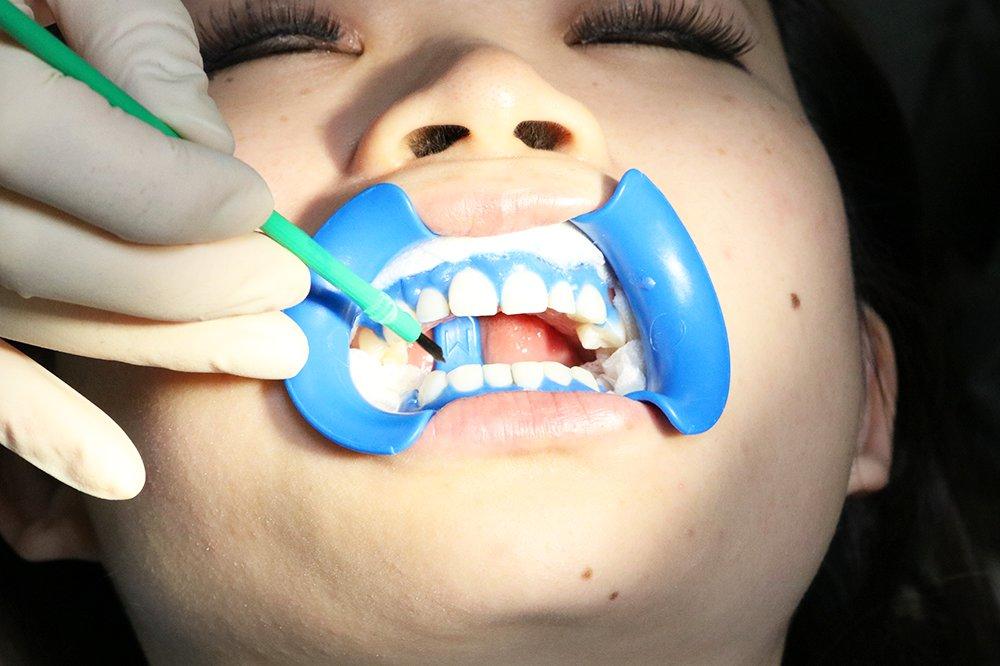 歯ぐきの保護