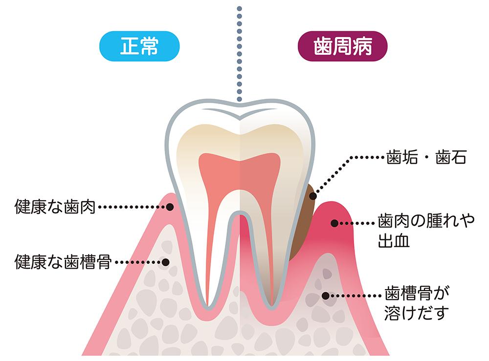 歯周病との比較